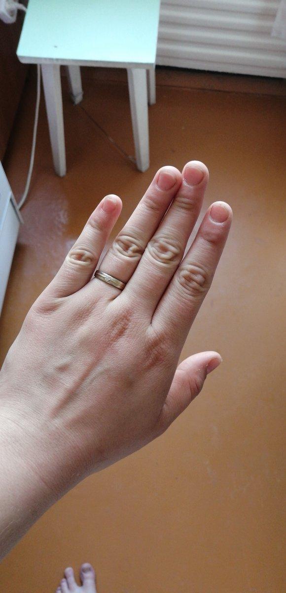 Кольцо просто чудо